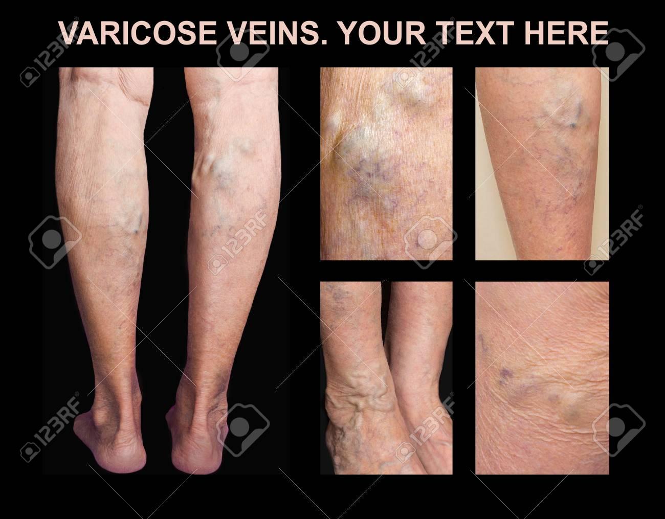 fotos de venas varicosas en las piernas