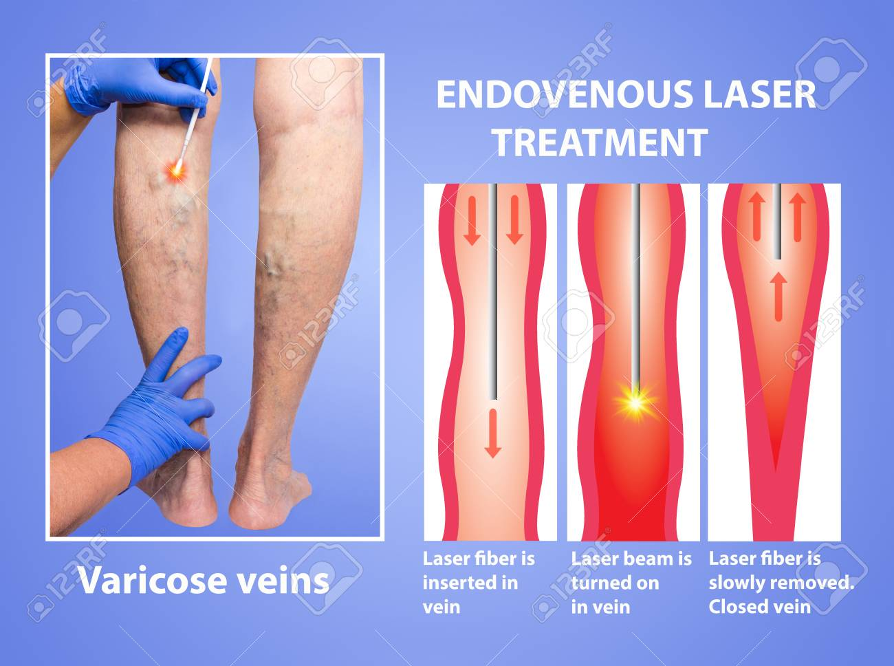 laser chirurgie varicose vene