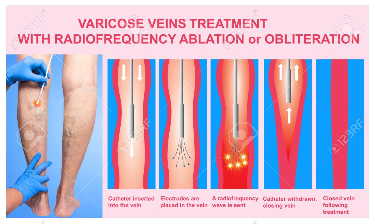 Varicose Veins And Treatment With Radiofrequency Ablation Stock ...