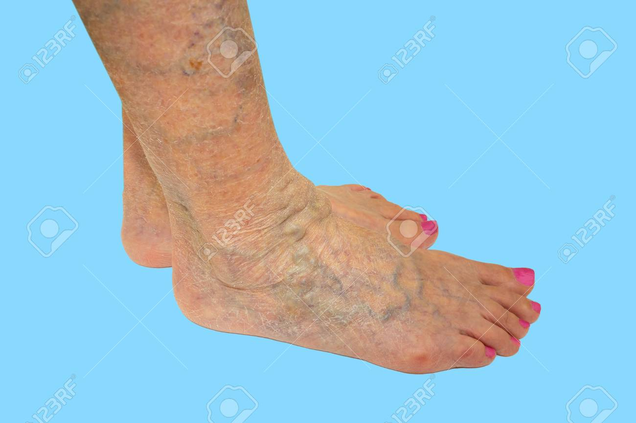 The Varicose Veins On Female Legs On Blue Background Stock Photo