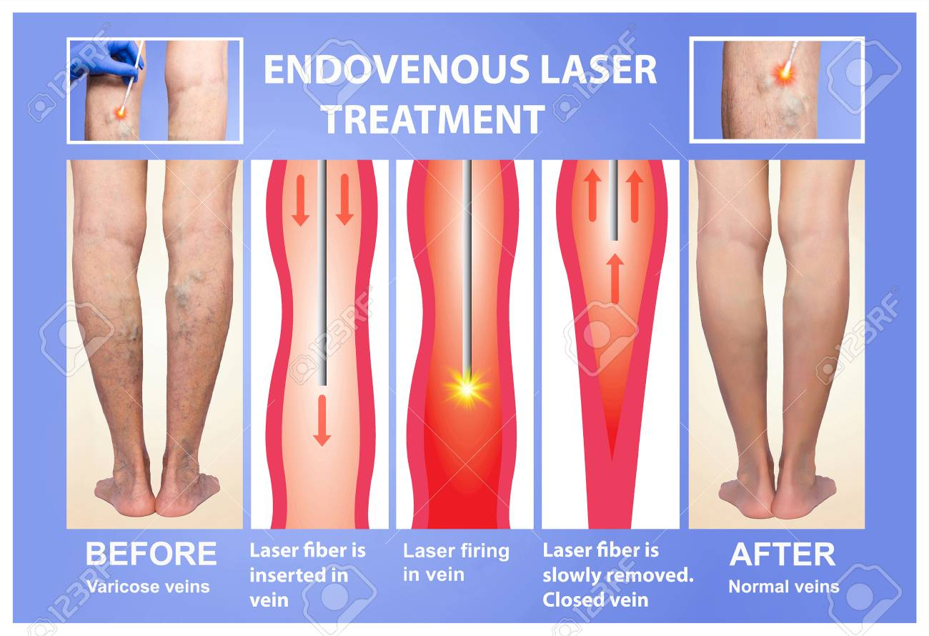 endovascular laser treatment