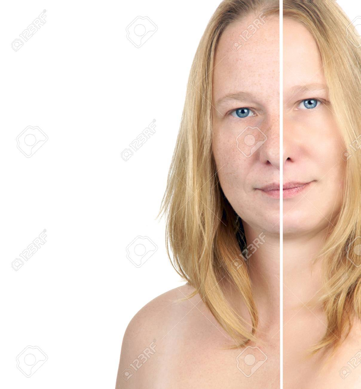 before after image of a woman - 15338948
