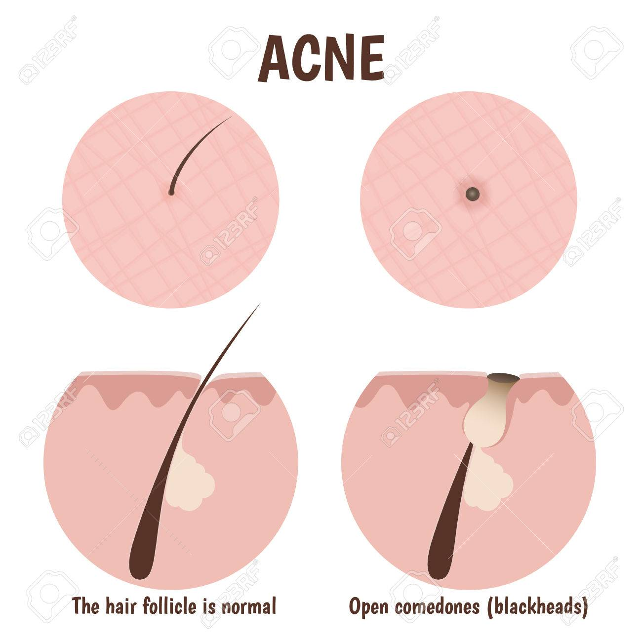 structure of the hair follicle, problematic skin with blackheads - 43761446
