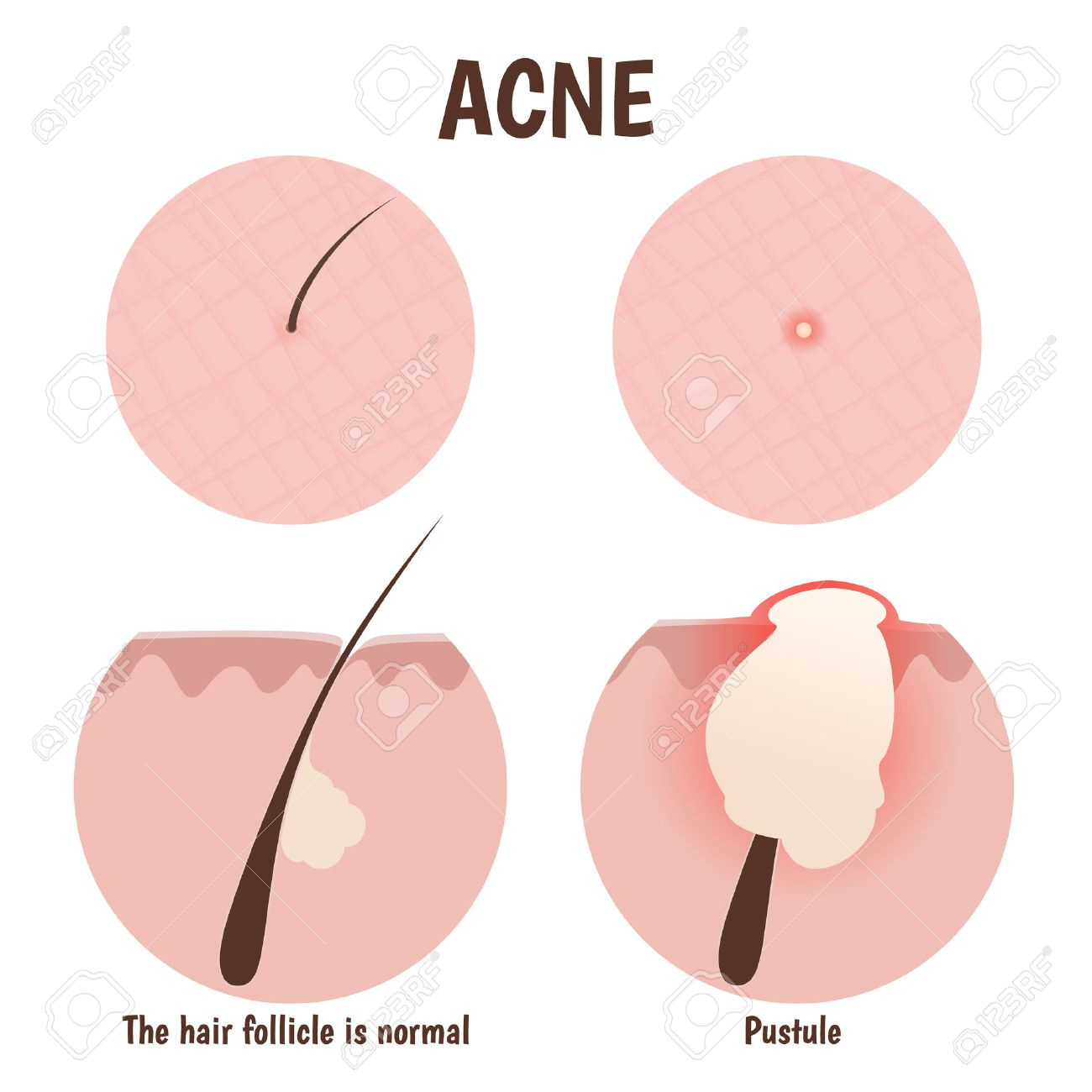 structure of the hair follicle, problem skin with pustules, pimples - 43761450