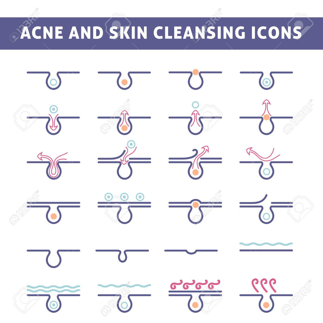 icon acne, schematic view of a skin care, problem skin with acne in section - 47006918