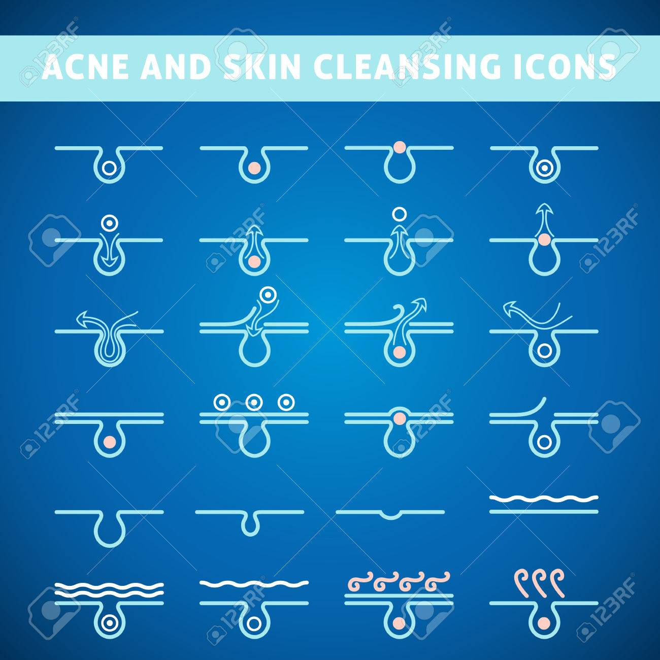 icon acne, schematic view of a skin care, problem skin with acne in section - 47006921