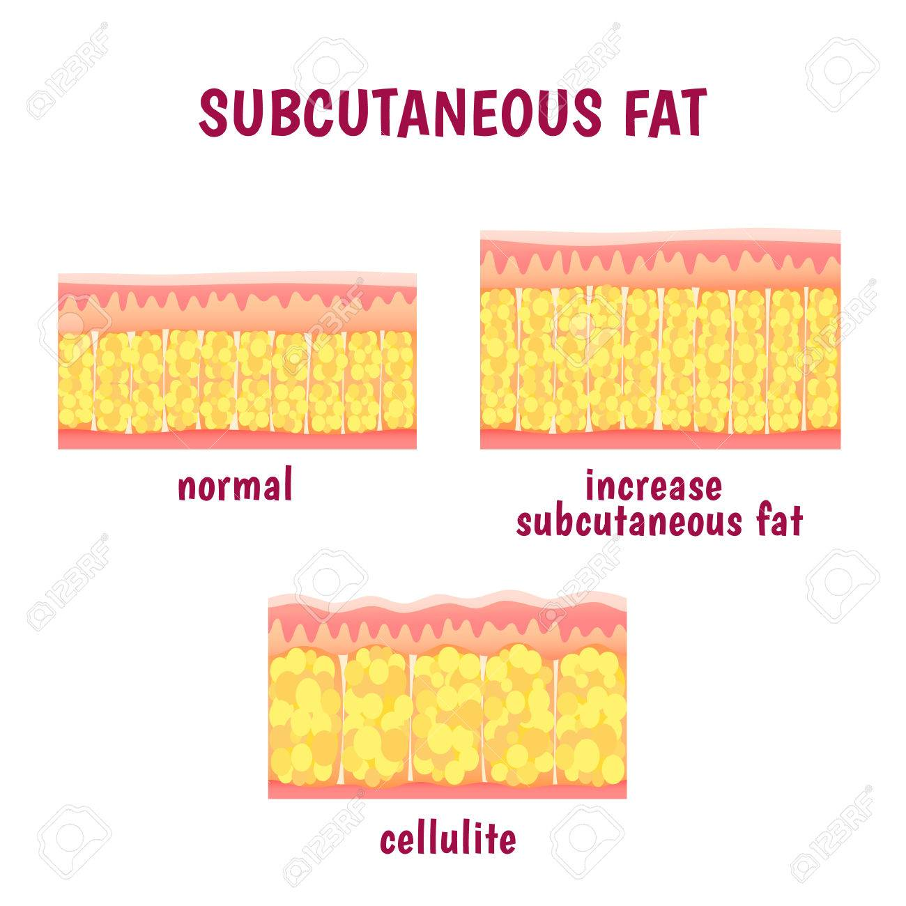 leather sectional layer of subcutaneous fat, cellulite scheme - 51630075