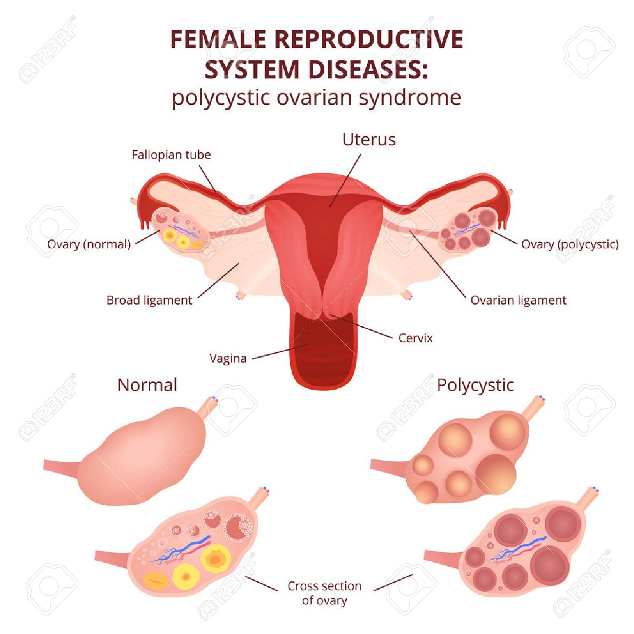 female reproductive system, the uterus and ovaries scheme, polycystic ovary syndrome, ovarian cyst - 56801820