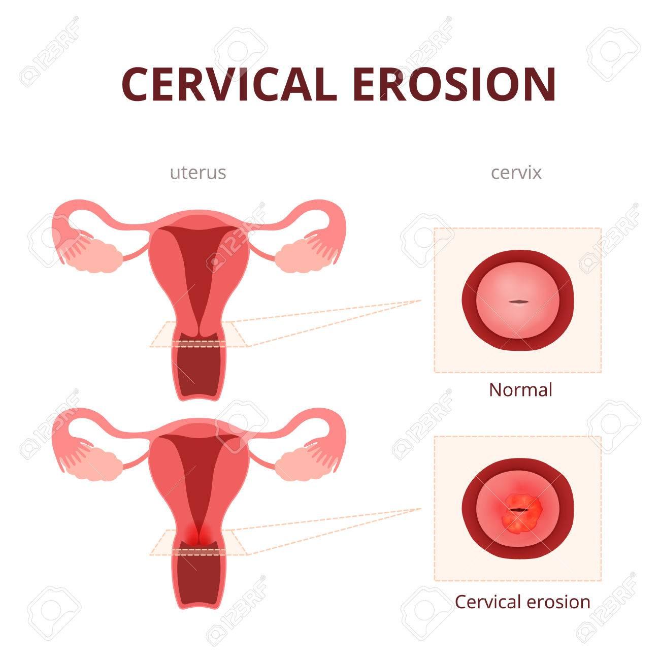tipos de cancer del sistema reproductor femenino