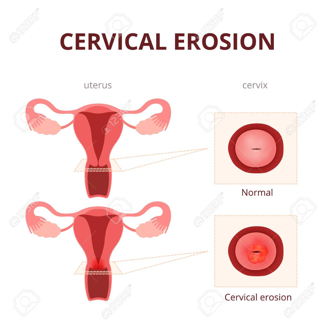 schematic illustration of the uterus and the cervix, female reproductive system diseases - 57878168