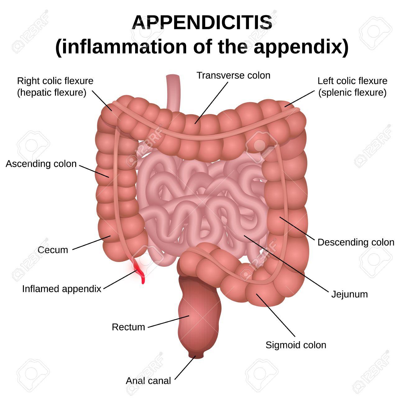 Apendicitis, Una Inflamación Del Apéndice, El Colon Y El Intestino ...