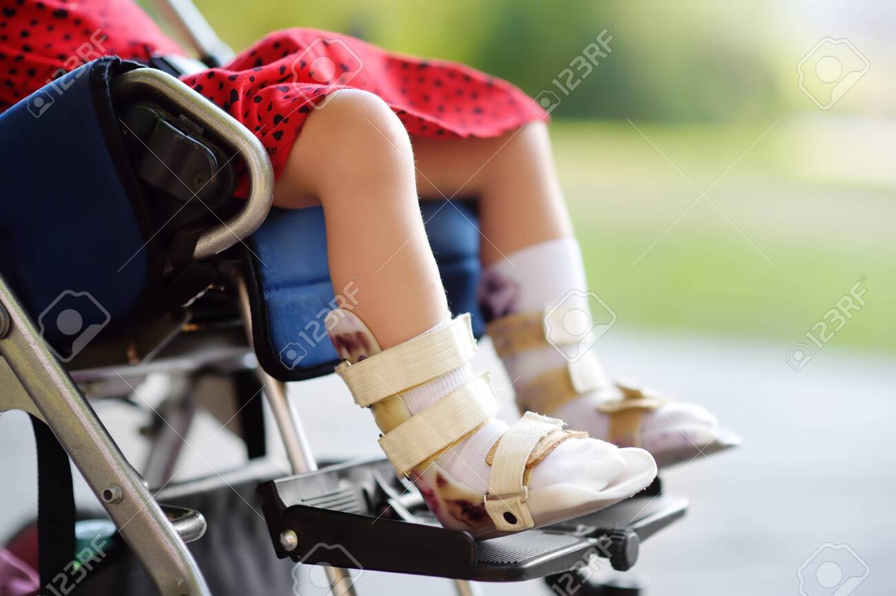 Disabled girl sitting in wheelchair. On her legs orthosis. Child cerebral palsy. Inclusion. Family with disabled kid. - 125414875