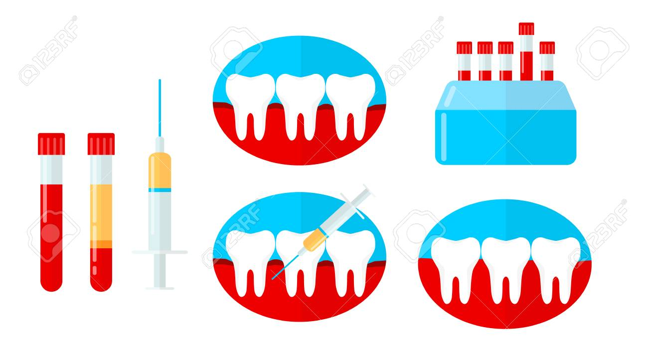 PRP set, platelet rich plasma in dentistry. Tooth, bleeding gum, syringe, centrifuge. Vector illustration in flat style - 115108607