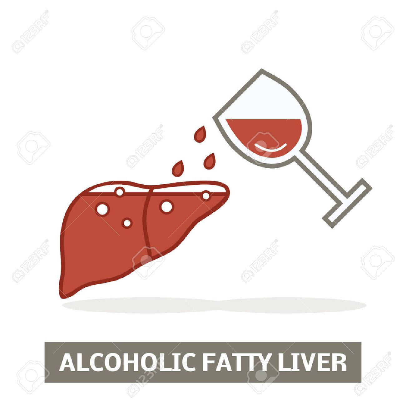 Alcoholic fatty liver concept - 67284979