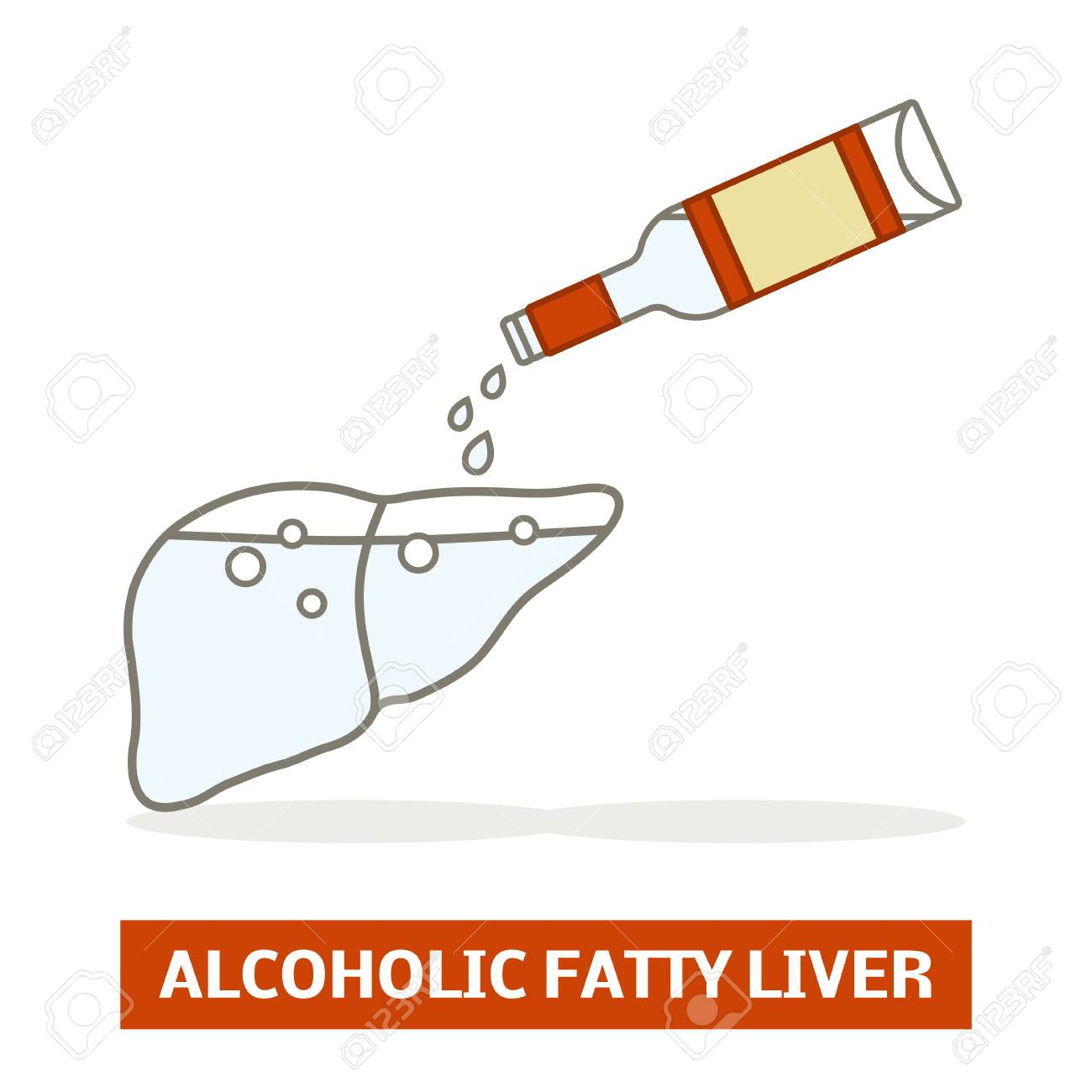 Alcoholic fatty liver concept. Silhouette of a liver is being filled with a vodka - 104445028