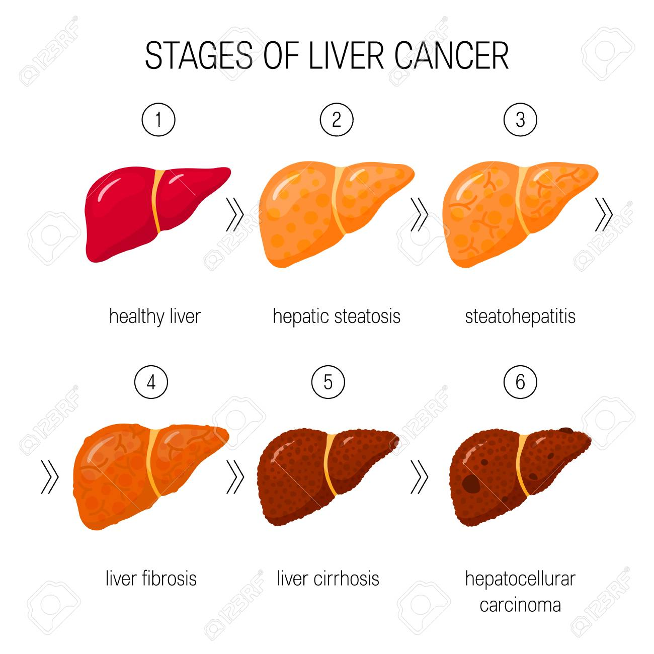 Stages of liver damage concept. Vector illustration of healthy liver, steatosis, NASH, fibrosis, cirrhosis and cancer in cartoon style - 110232714