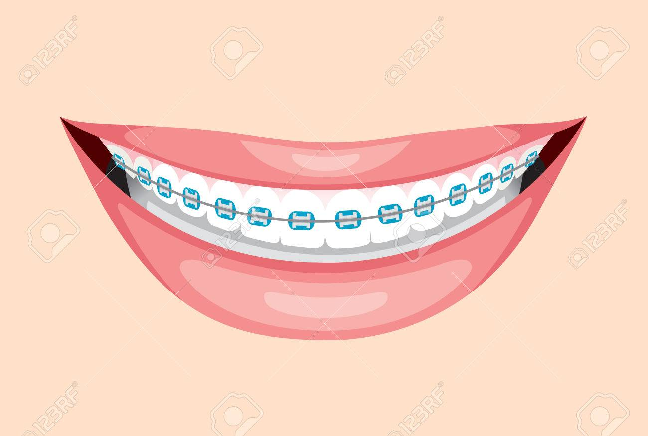 Beautiful Smile With Teeth Braces, Medical, Dentistry, Hospital,