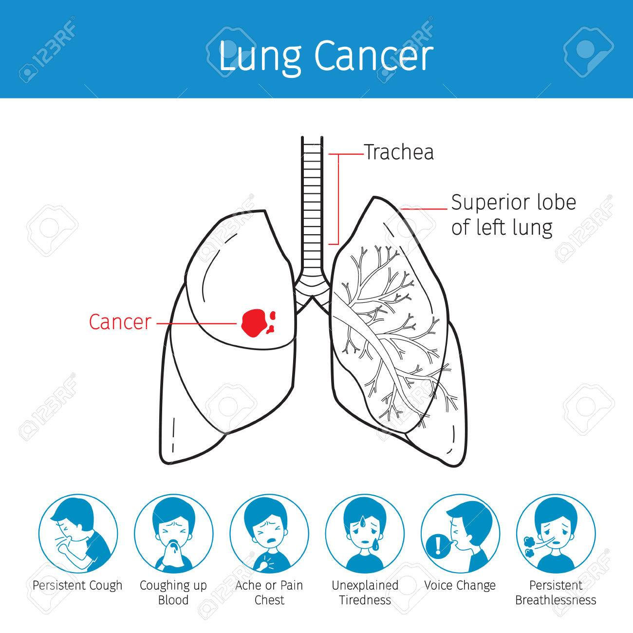 Illustration Of Human Lungs, Outline And Lung Cancer Symptoms ...