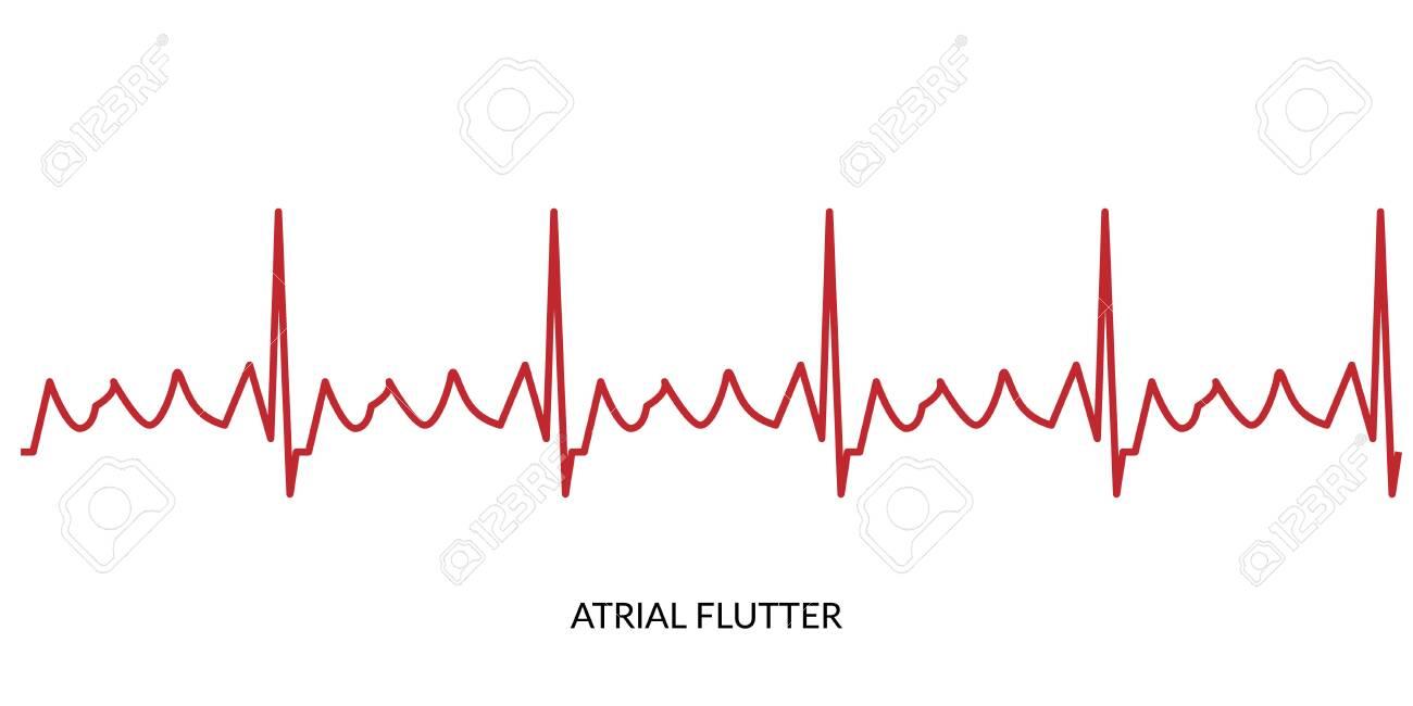 心電図 フラッター Ic群抗不整脈薬はどういうときに使いますか。専門医でない医師でも使えますか