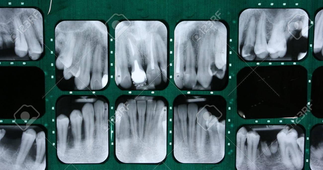 X-ray of human teeth - 8257152