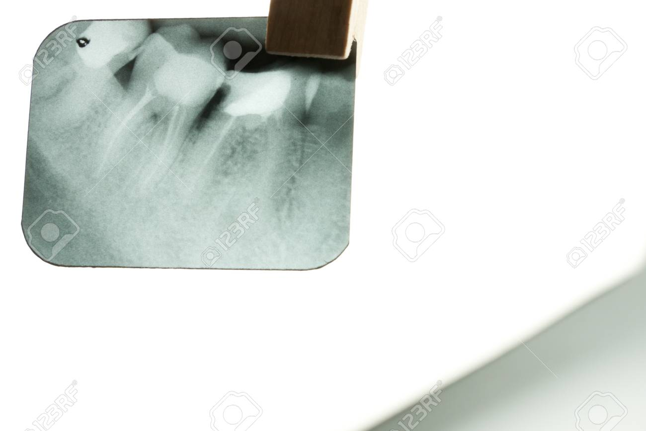 X-ray of human teeth on light background Stock Photo - 17360186