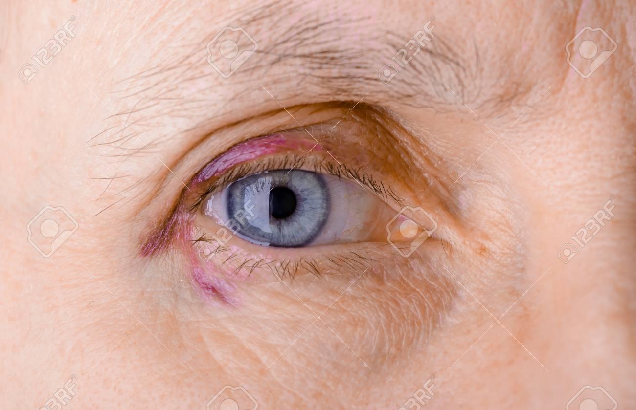 que es una inflamacion ocular