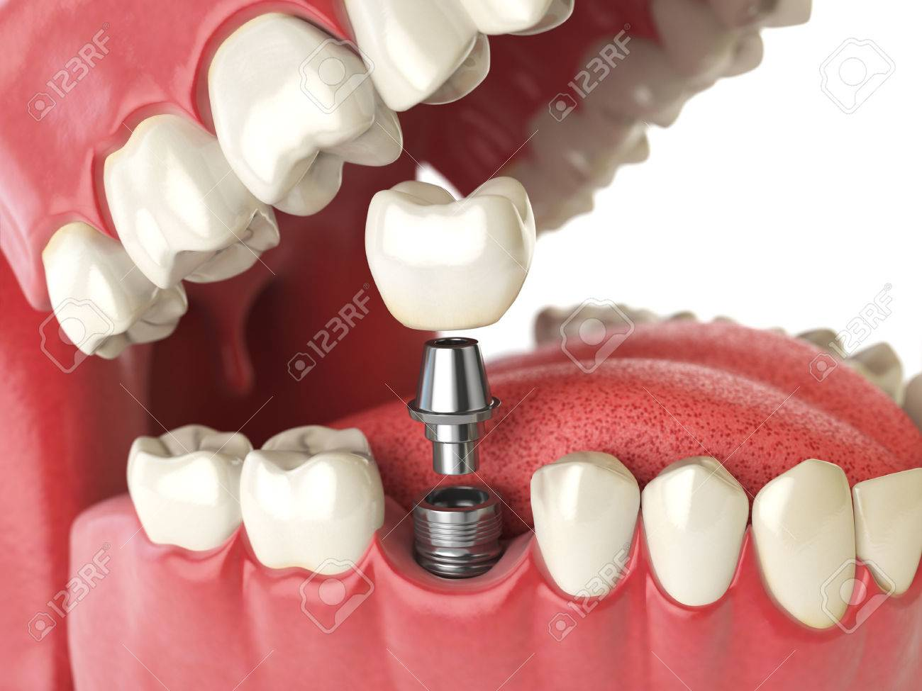 Tooth Human Implant Dental Concept Human Teeth Or Dentures