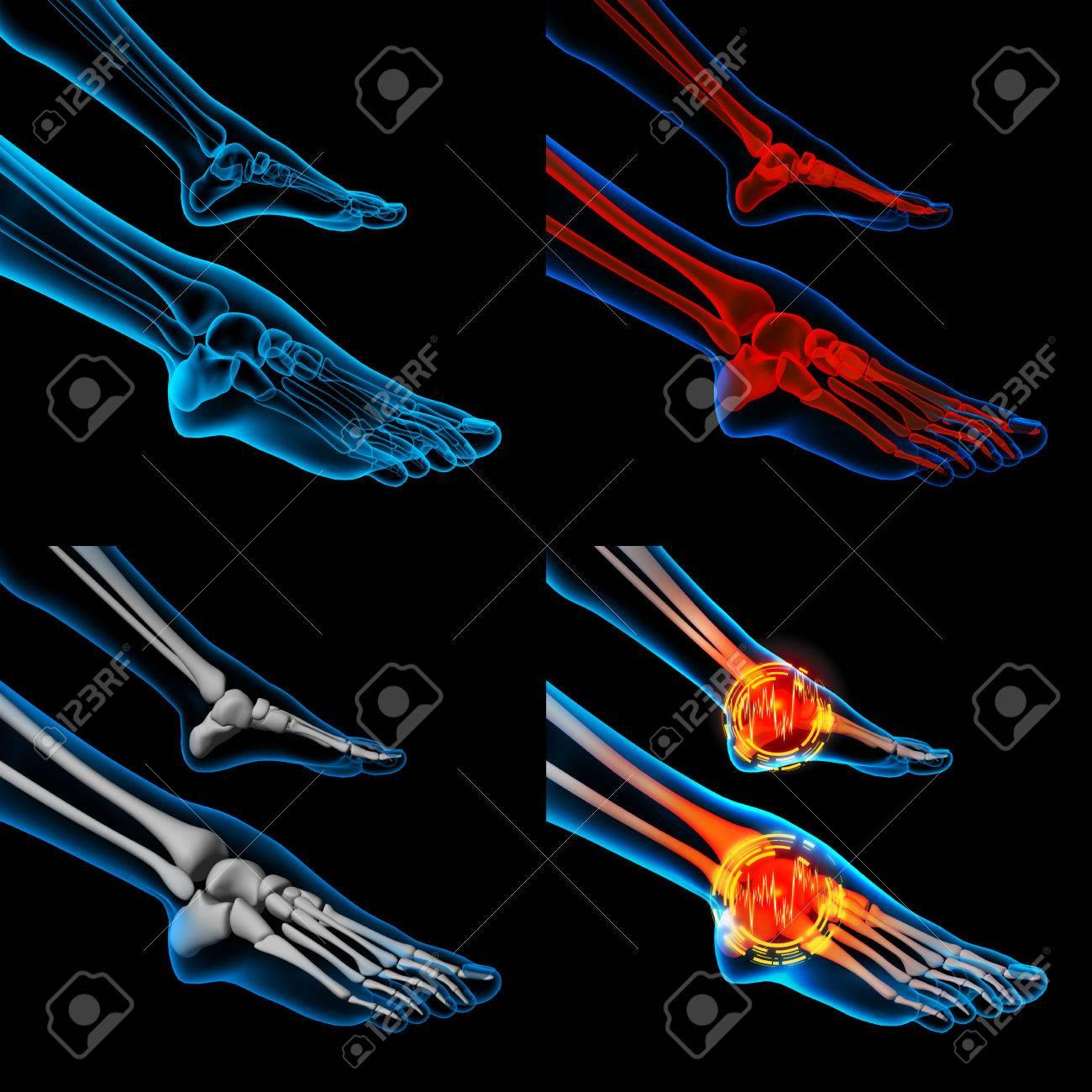 3D Dolor En El Pie Humano Con La Anatomía Del Esqueleto De Un Pie ...