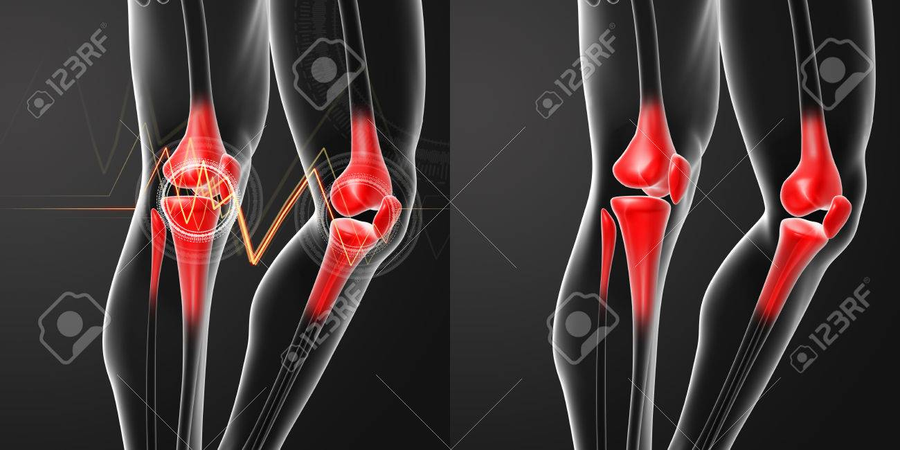 3D Rendering Human Knee Pain With The Anatomy Of A Skeleton Leg ...