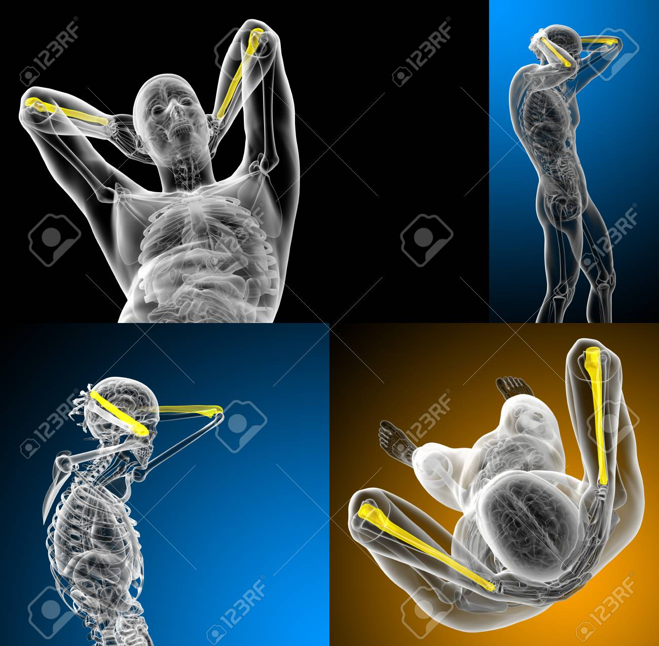 Fantástico Diagrama De Cúbito Imagen - Anatomía de Las Imágenesdel ...