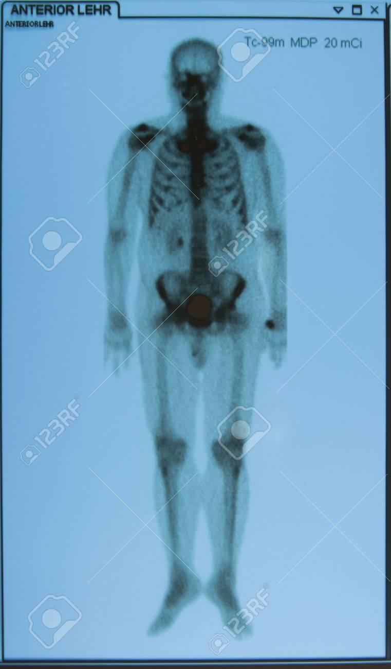 X-Ray Bild Der Menschlichen Ganzkörper Für Eine Medizinische ...