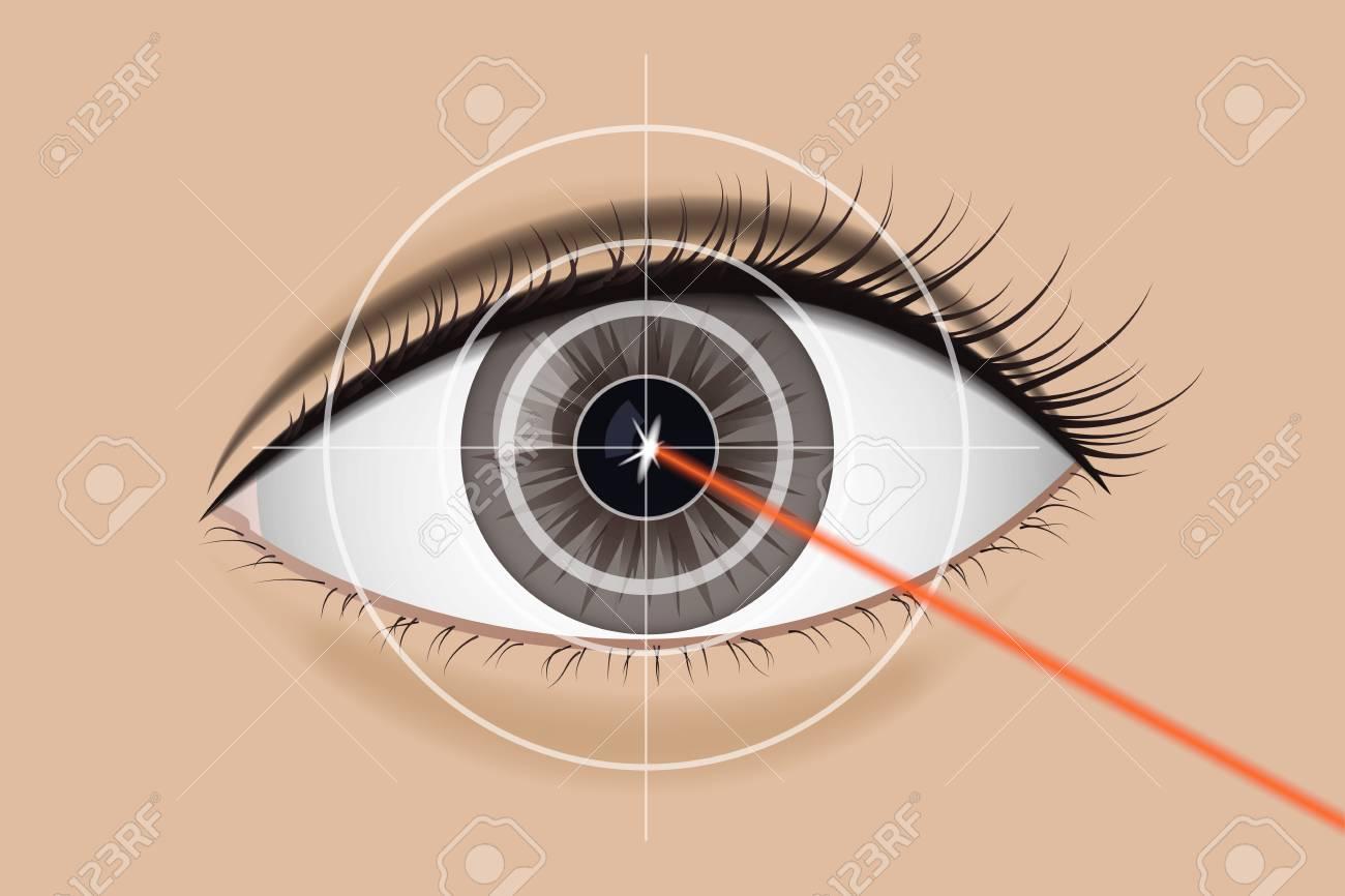 Of laser vision correction. - 94058575