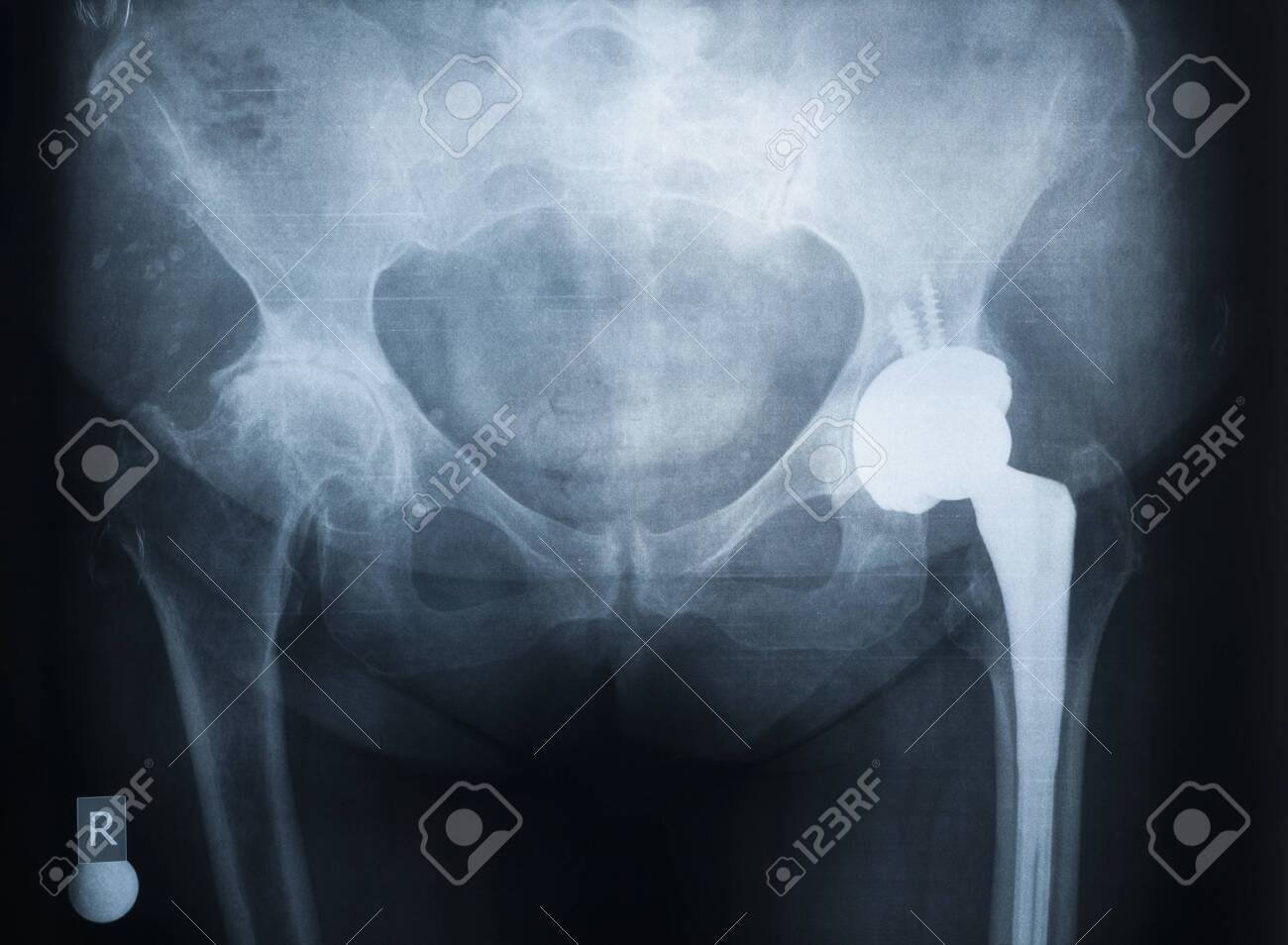 X-ray of the prosthesis of the left hip joint. The right joint is affected by rheumatoid arthritis - 139230266