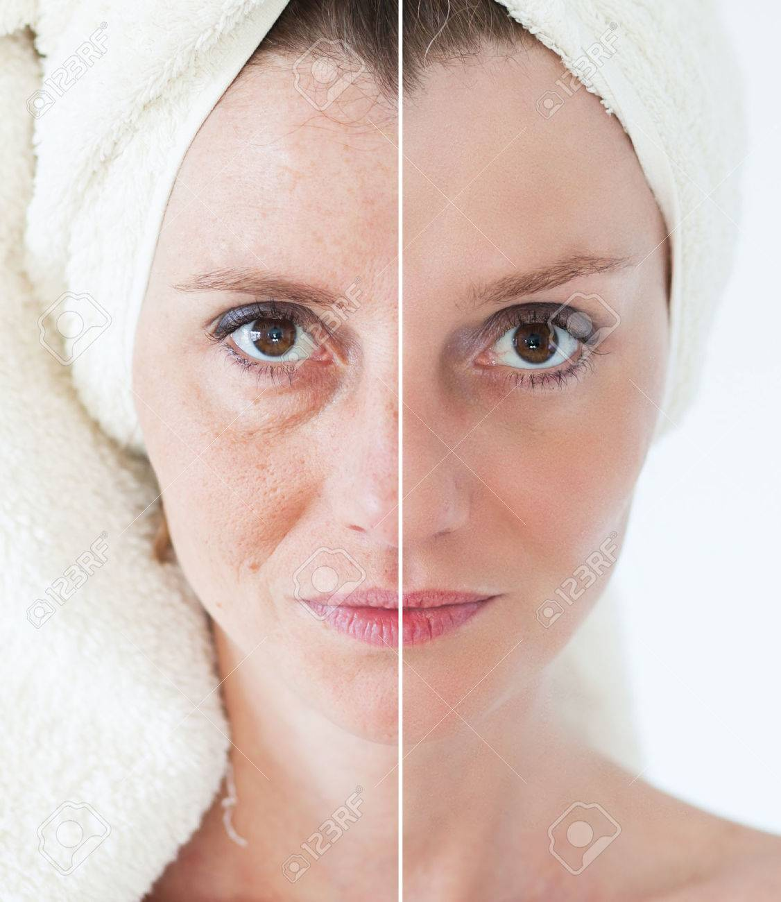 Beauty concept - skin care, anti-aging procedures, rejuvenation, lifting, tightening of facial skin - 38470622