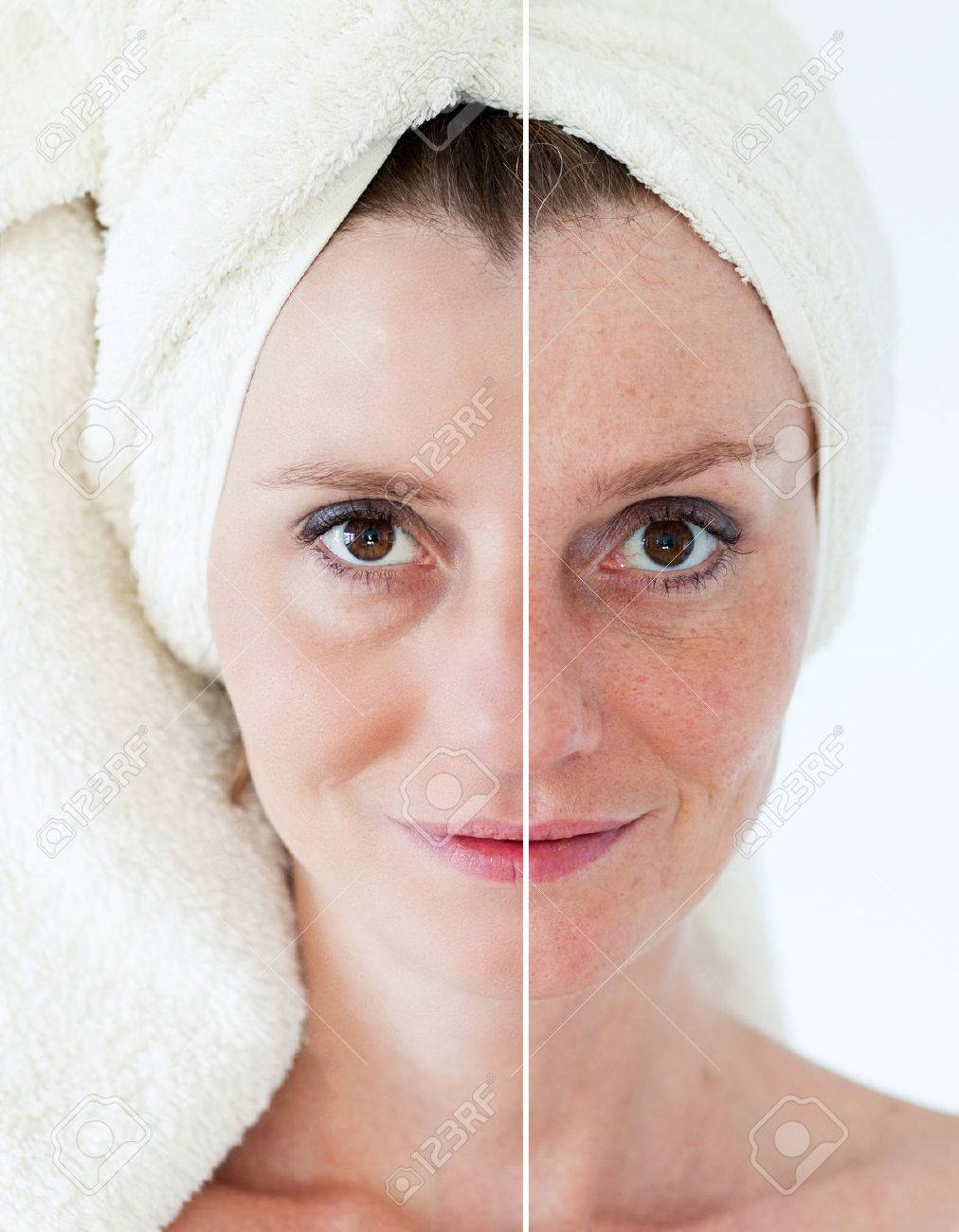 Beauty concept - skin care, anti-aging procedures, rejuvenation, lifting, tightening of facial skin - 38470655