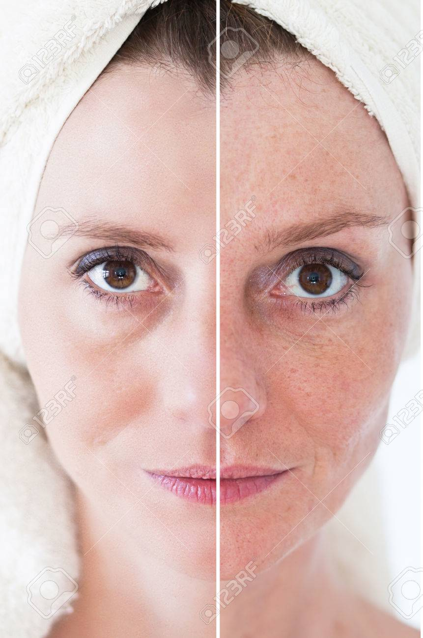 Beauty concept - skin care, anti-aging procedures, rejuvenation, lifting, tightening of facial skin - 38470662