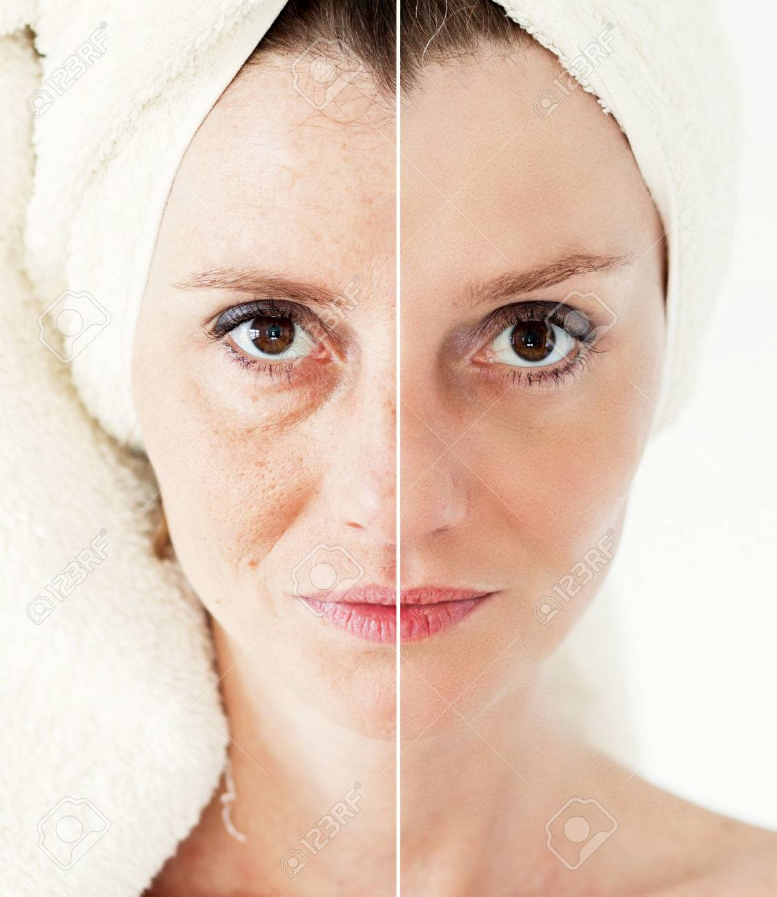 Beauty concept - skin care, anti-aging procedures, rejuvenation, lifting, tightening of facial skin - 39761836
