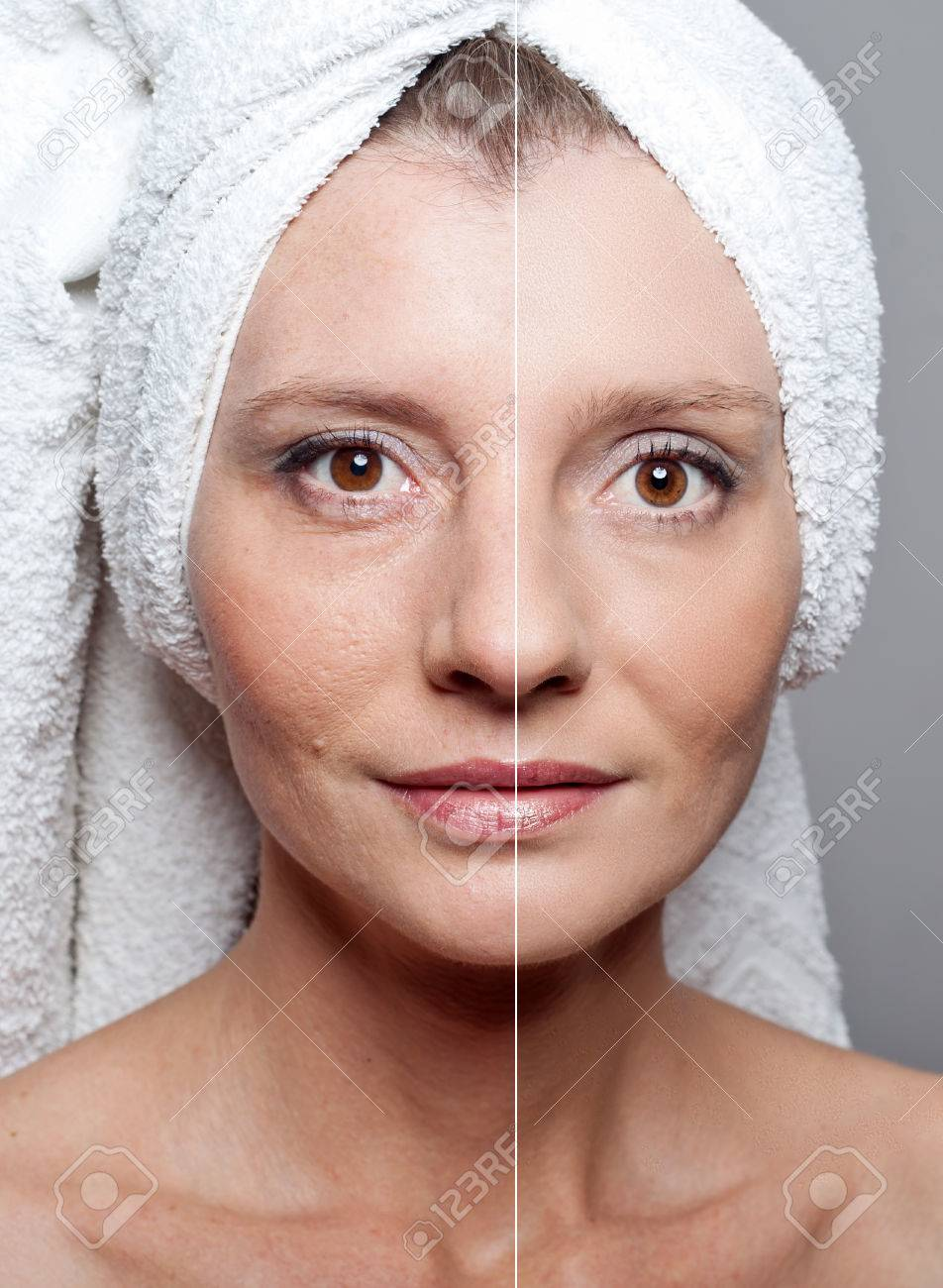 Beauty concept - skin care, anti-aging procedures, rejuvenation, lifting, tightening of facial skin - 47692982
