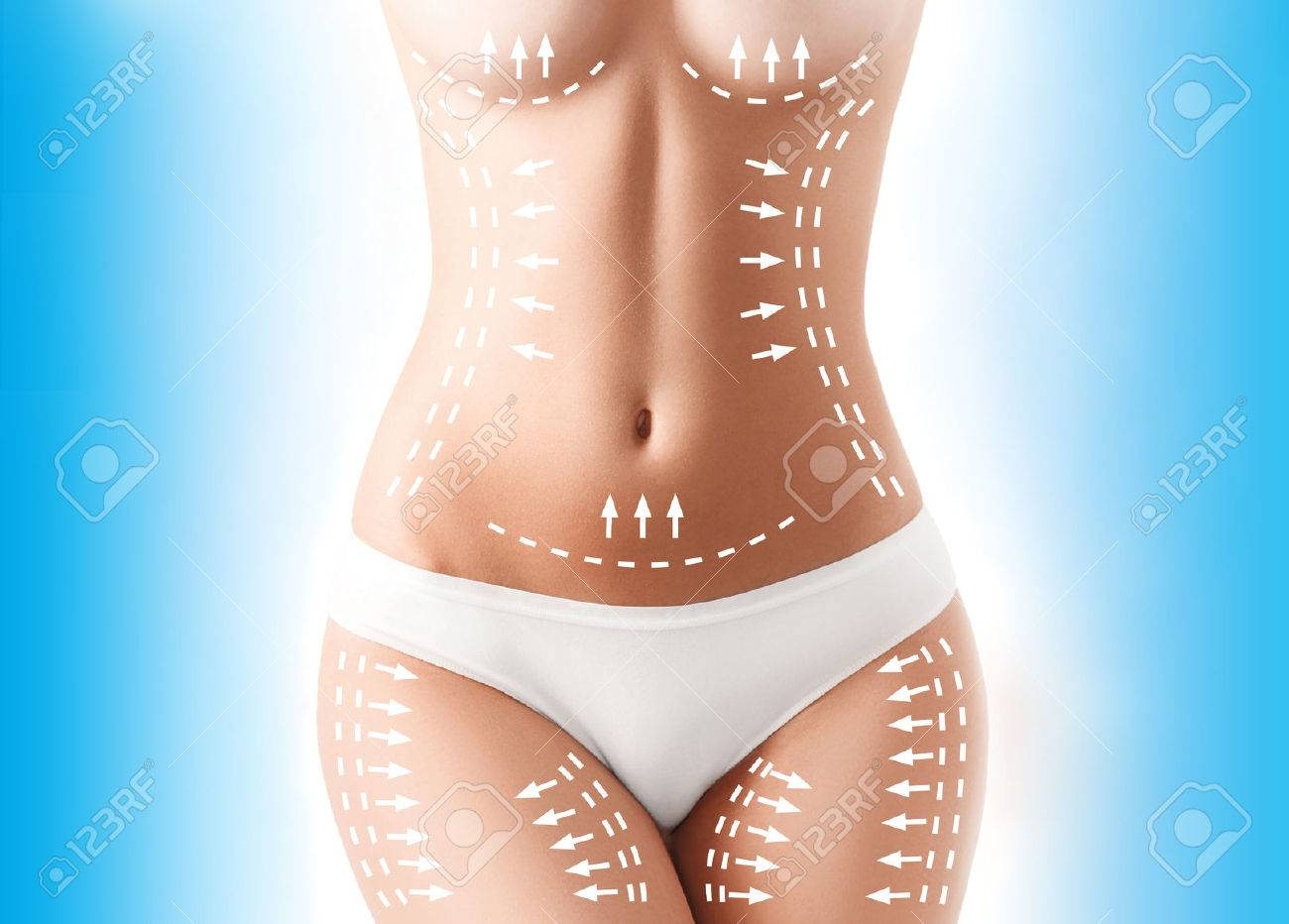 The cellulite removal plan. White markings on young woman body - 73965672
