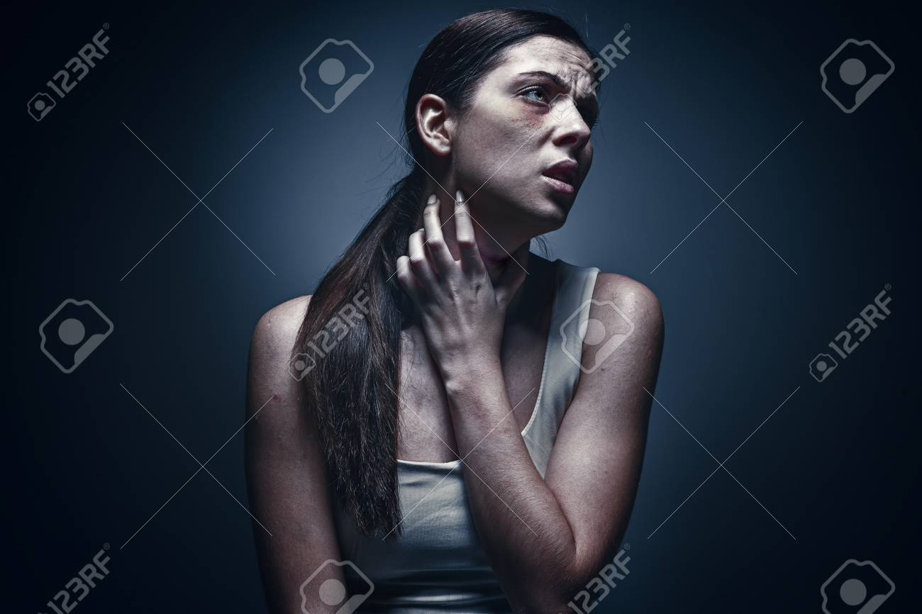 Close up portrait of a crying woman with bruised skin and black eyes - 91886672