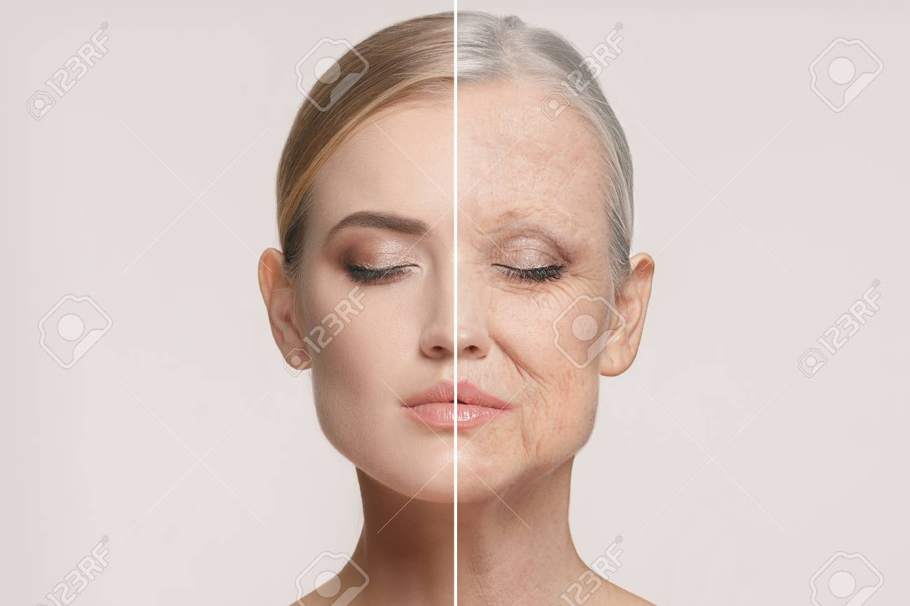 Comparison. Portrait of beautiful woman with problem and clean skin, aging and youth concept, beauty treatment - 95799631
