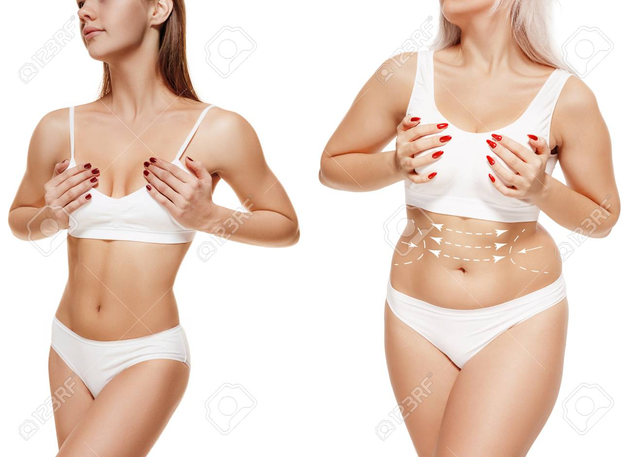 Two Young Thick And Thin Women Have Different Figures Comparison Stock Photo Picture And Royalty Free Image Image 116259151