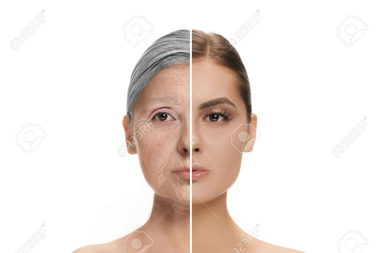 Comparison. Portrait of beautiful woman with problem and clean skin, aging and youth concept, beauty treatment and lifting. Before and after concept. Youth, old age. Process of aging and rejuvenation - 158679516