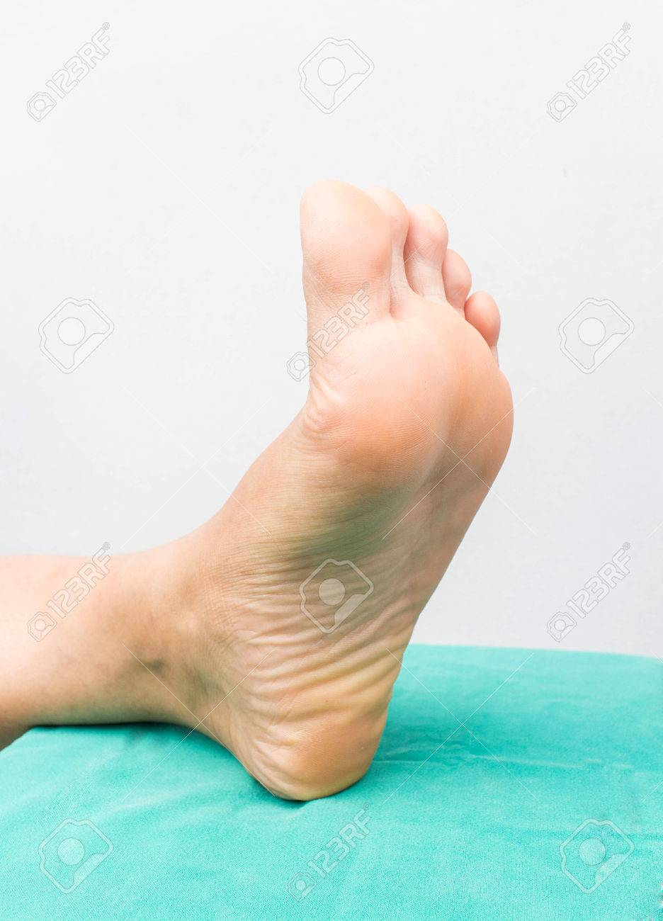 foot skining of diabetis stock photo picture and royalty free image
