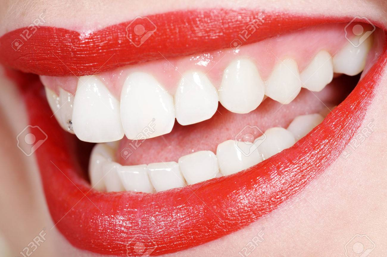 beautiful white teeth with red mouth Standard-Bild - 31587687
