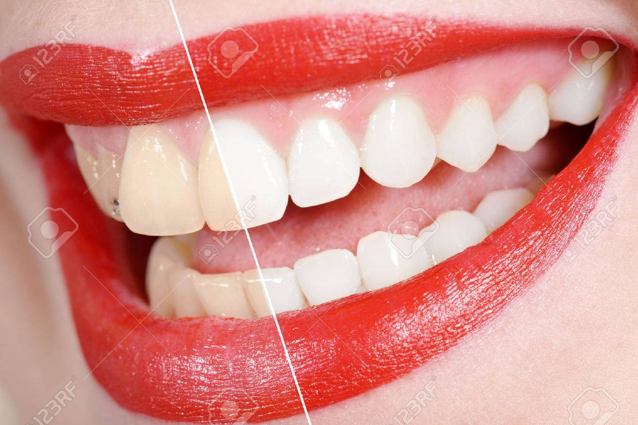 before and after the tooth whitening Standard-Bild - 31587688