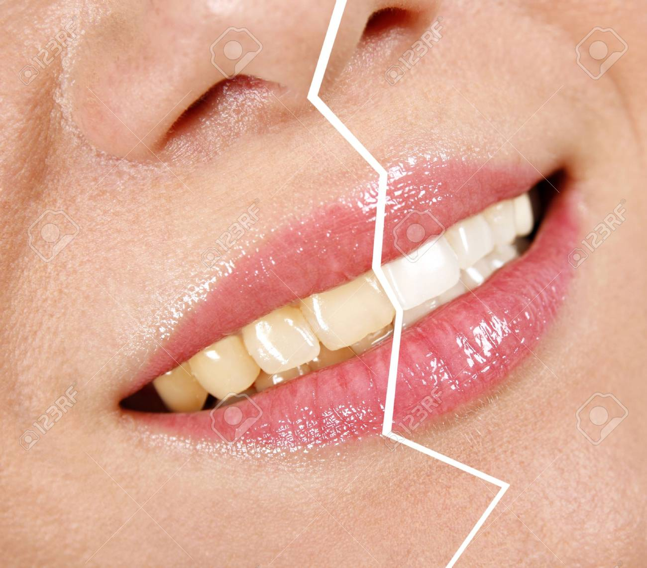 Whitening treatment - 17829371