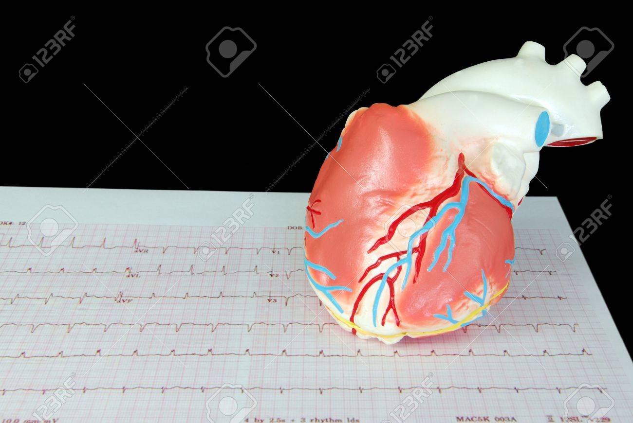Heart on an Ecg Stock Photo - 5429249