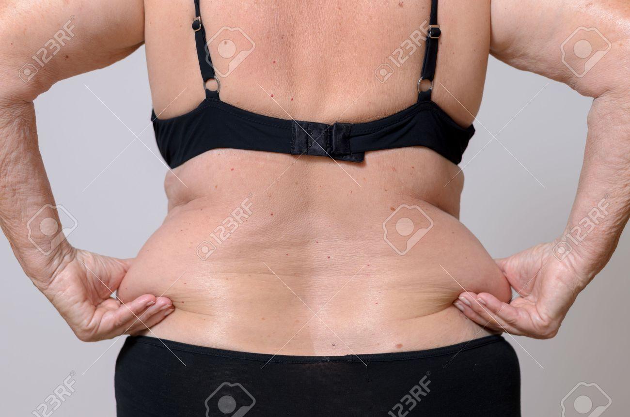 Graisse sur les hanches femme