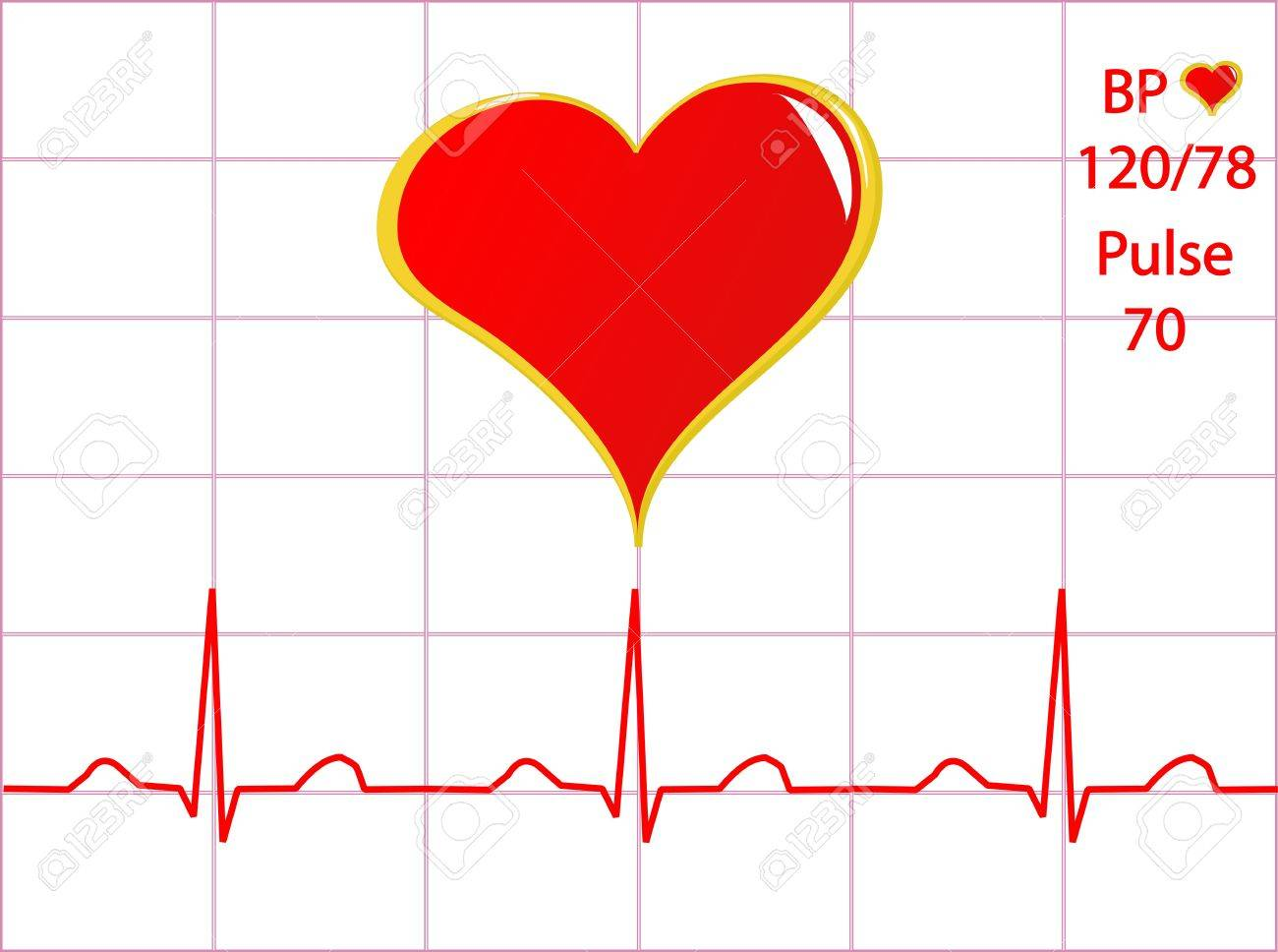 A healthy heart illustration with a cardiac trace showing normal sinus rhythm, blood pressure and pulse Stock Vector - 7006159